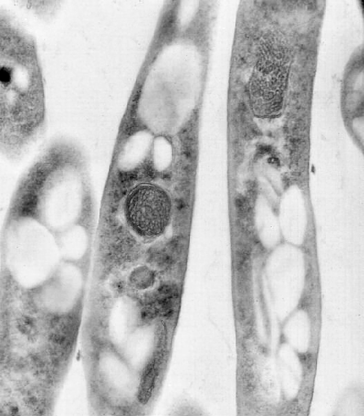 This transmission electron microscopic (TEM) image reveals some of the ultrastructural exhibited by a number of Bacillus anthracis bacteria. Note that these bacteria were cut in their longitudinal plane, reflecting their rod-shaped structure.